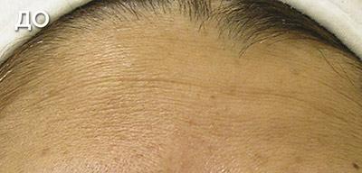 До и после HydraFacial. Морщины